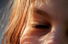 Vara e cel mai periculos anotimp pentru ochi